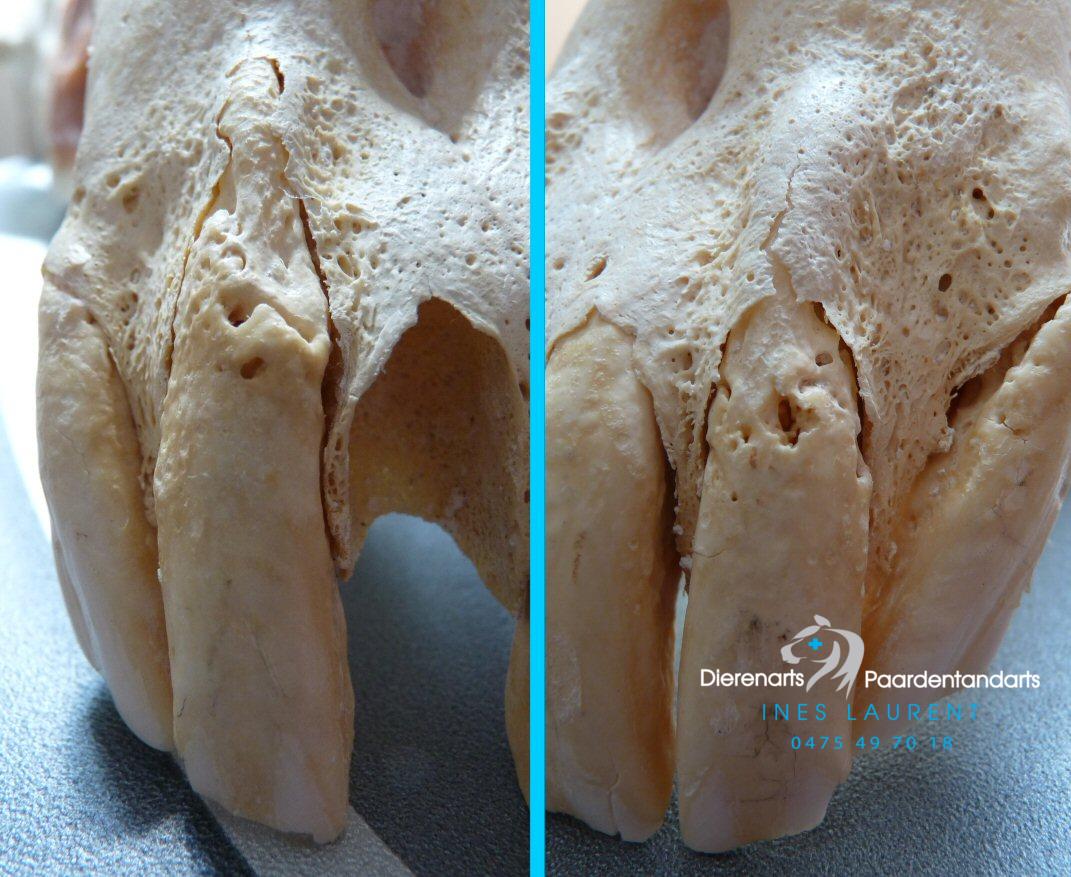 EOTRH met resorptie van tand en bot