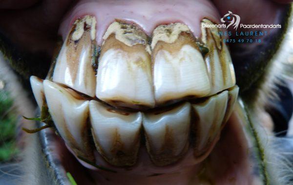 Smile en tandsteen